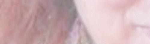 Foto zeigt Mund und Wange eines Gesichts, unscharf.